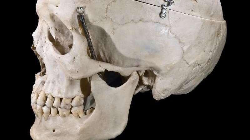 cranio-humano