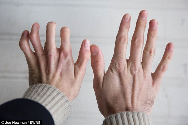 Can A Woman Be Born With A Long Ring Finger