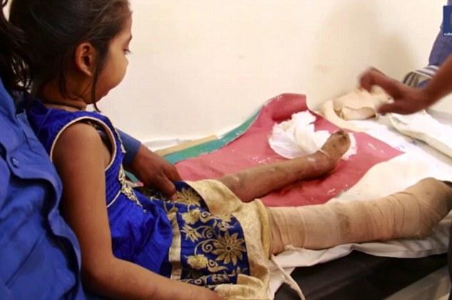 Por causa de uma condição rara que impede que sintam dores, irmãos indianos comeram os próprios dedos
