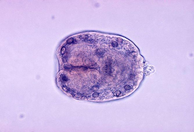 Echinococcus-granulosus