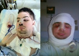 Mitch-Hunter-transplante-facial_01