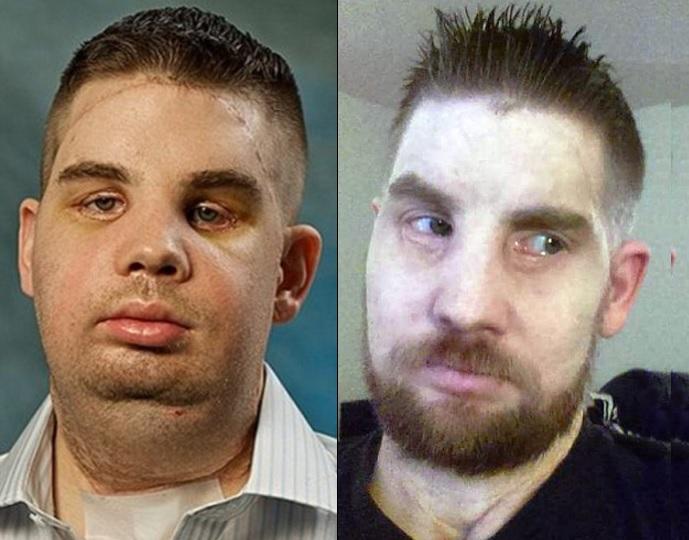 Mitch-Hunter-transplante-facial_02