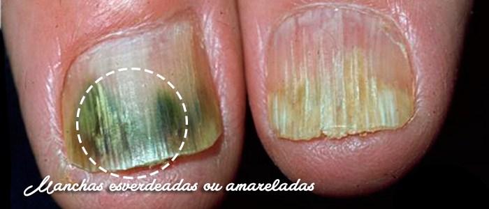 Manchas esverdeadas ou amareladas nas unhas