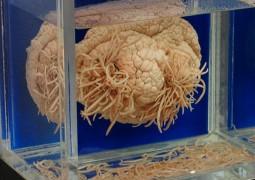 vermes-no-cerebro