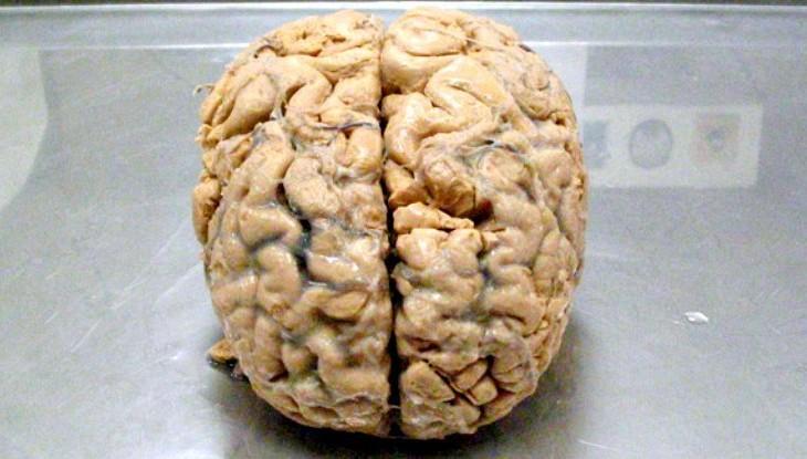 homem-vive-com-apenas-10-porcento-do-cerebro
