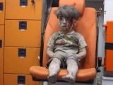 menino-sirio-vitima-da-guerra