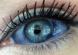 mulher-injeta-tinta-no-globo-ocular_01