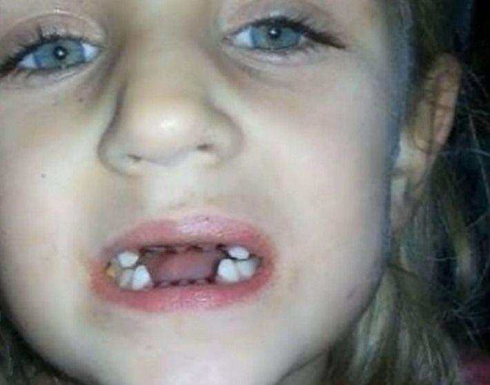 mae-filma-dentista-e-descobre-algo-chocante_2