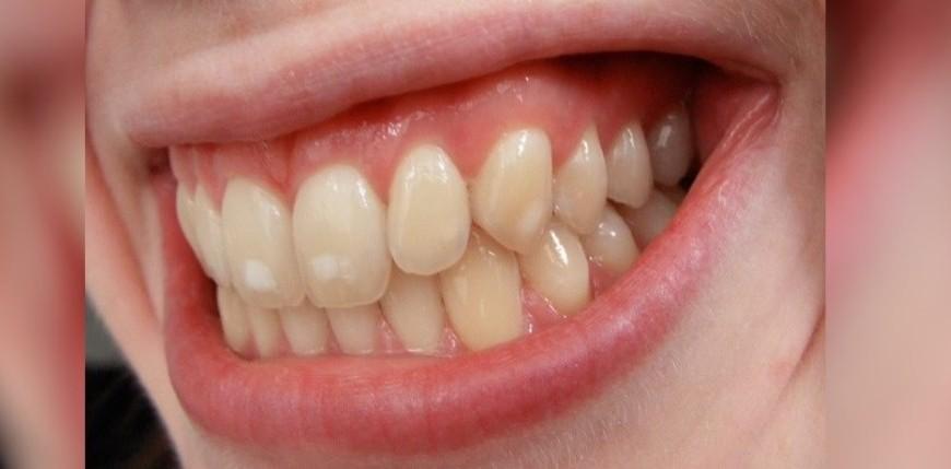 o-que-sao-aquelas-manchinhas-no-dente