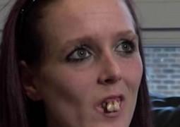 dentes-desalinhados_01