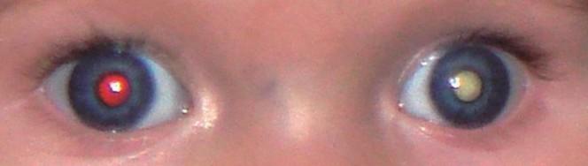 olhos-01-04