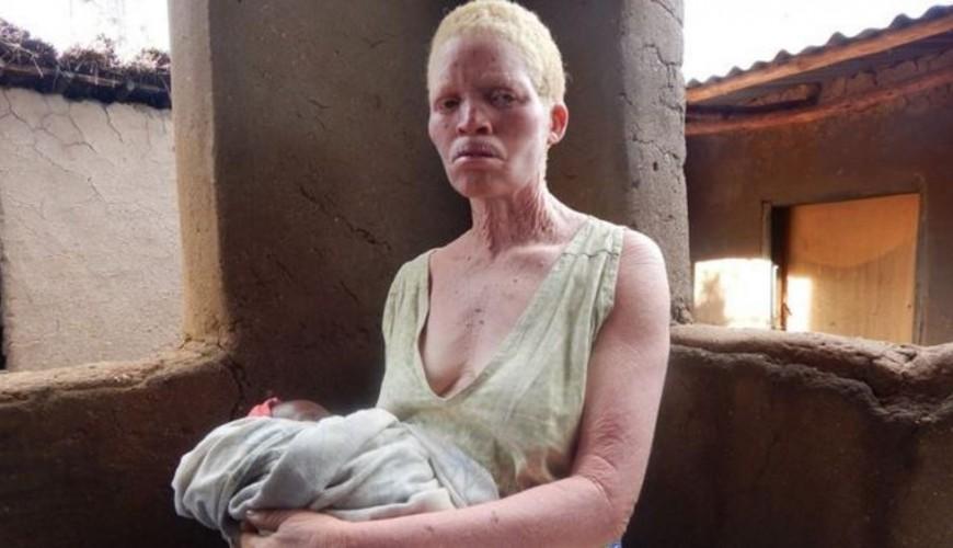 _94791159_albinosurvivor