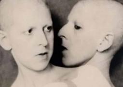 A-trágica-história-de-Herculine-Barbin-a-hermafrodita-que-confundiu-a-França-no-século-XIX