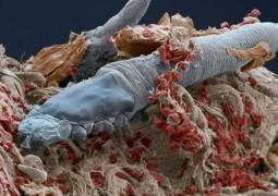 acaro-de-cilios
