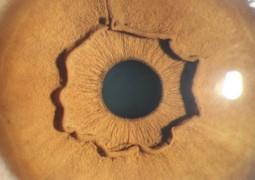 globo-ocular_01