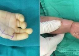 menina-cirurgia-indicador-no-lugar-de-polegar_01