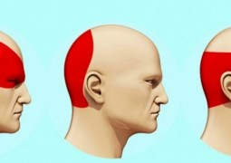 como-aliviar-dores-de-cabeça_capa_1