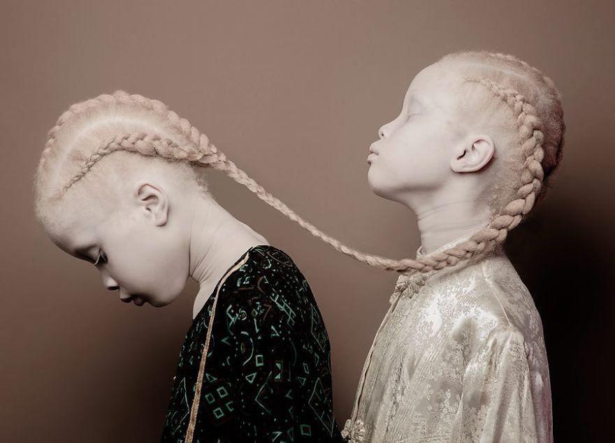 gemeas-albinas_01