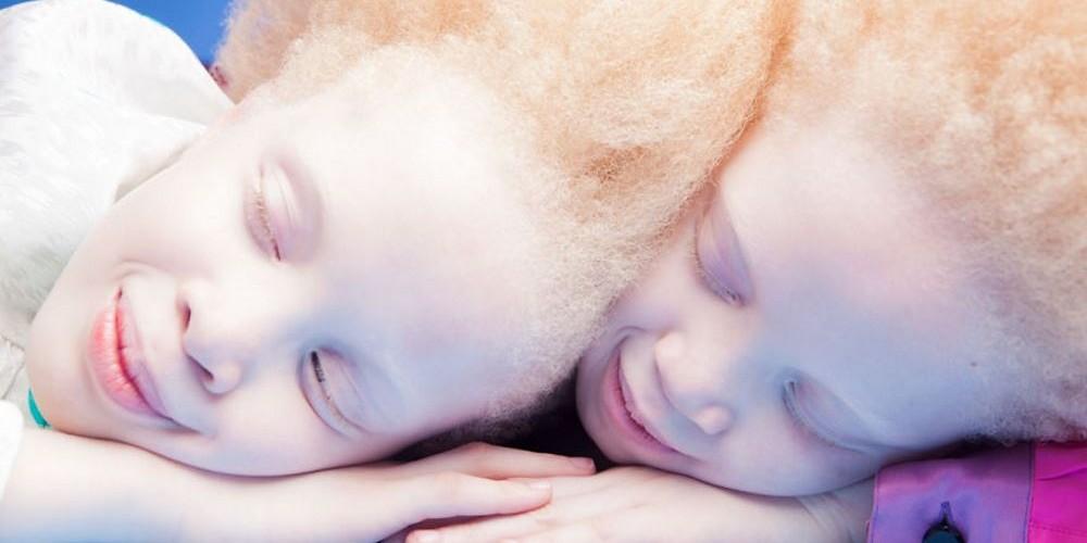 gemeas-albinas_02