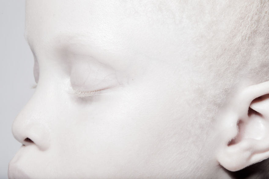 gemeas-albinas_03