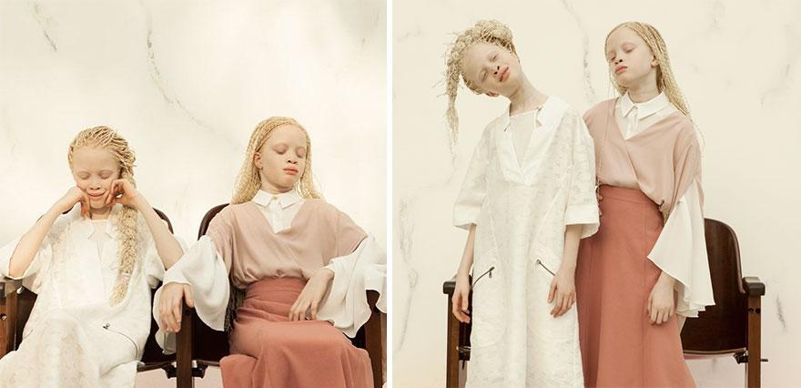 gemeas-albinas_04