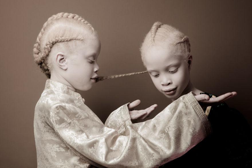 gemeas-albinas_05