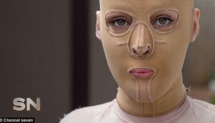 mulher-com-rosto-queimado-2