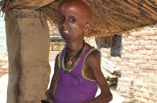 progeria-01