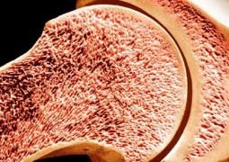 densidade-ossea