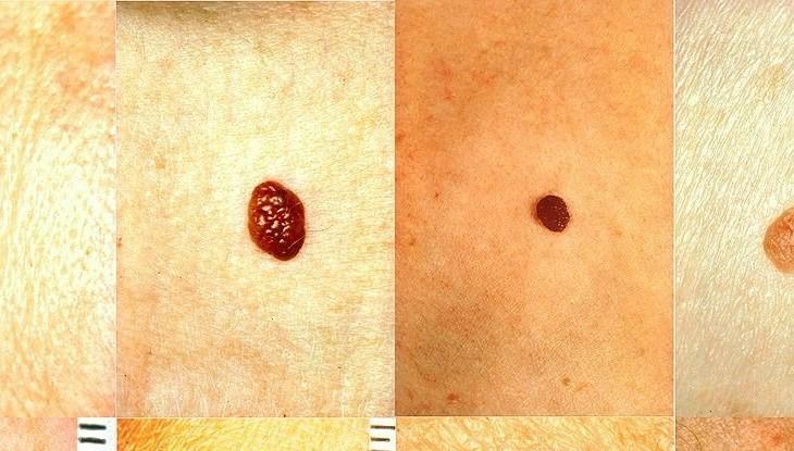 melanoma-normal-mole_1024