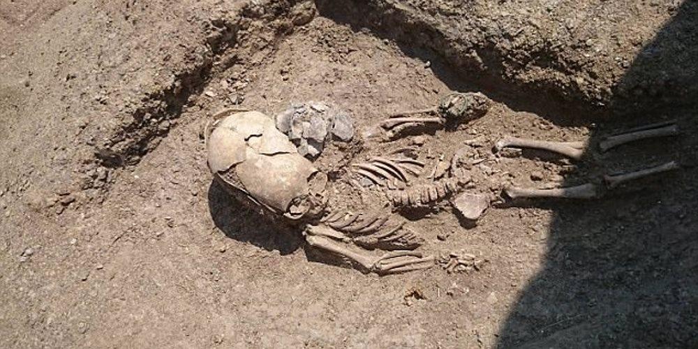cranio-deformado-encontrado_3