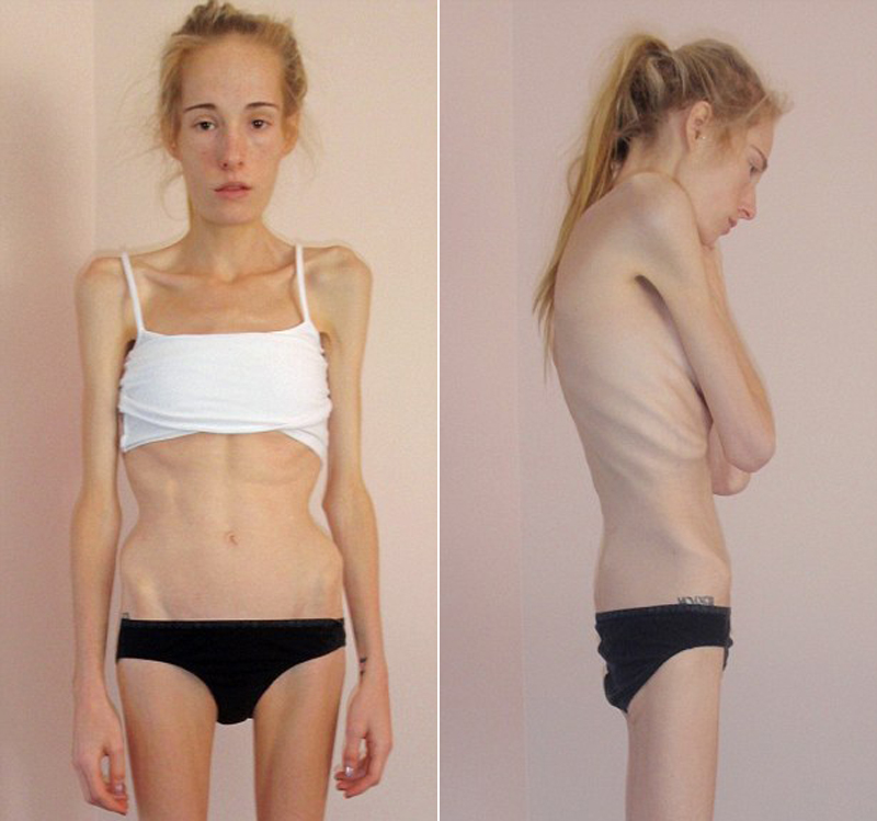 menina-anorexia