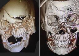 tomografias-cranio-esmagado
