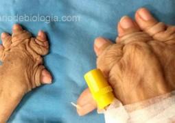 artrite-mutilante