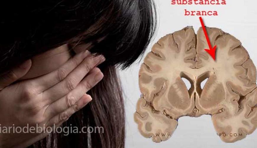 depressão-cerebro