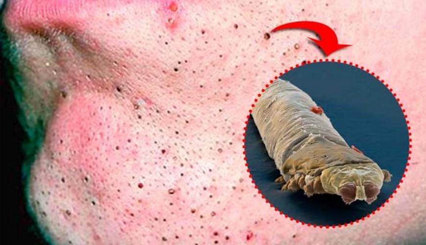 cravo-aracnideos