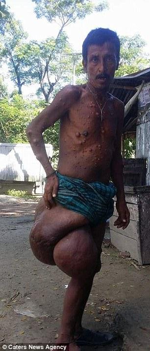 homem-com-tumor-3