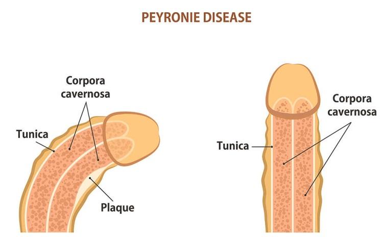 doenca-de-Peyrone