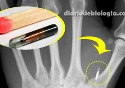 implante-de-microchip