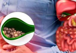 pedra-na-vesicula-sintomas