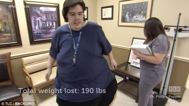 homem-obeso-35kgs_1