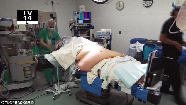 homem-obeso-35kgs_5