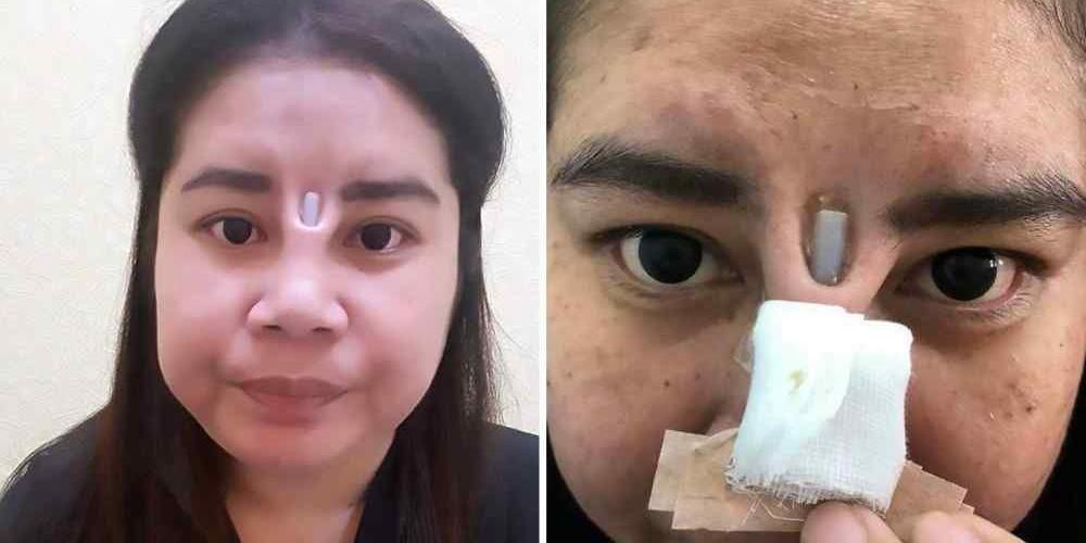 Fotos cirurgia plastica de nariz 52
