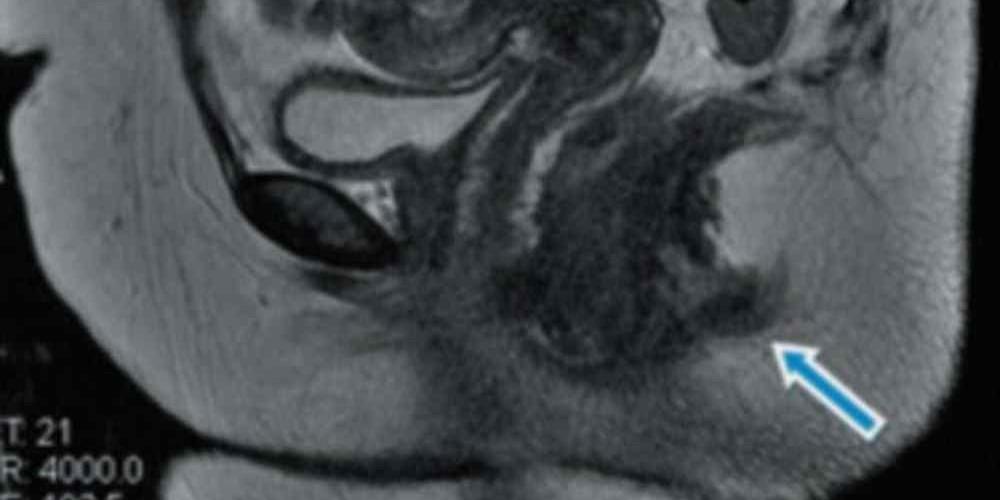 mulher-com-dois-canais-anais